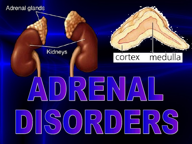 adrenal disorders tempe az